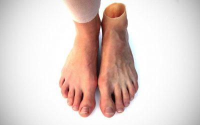 Προσθετικό πόδι και διαβήτης