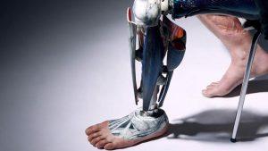 Ένα πόδι για τον Jozef Metelka | RehabLine-Χρονόπουλος-Γουγής-Προσθετικά, Ορθοτικά και Τεχνητά Μέλη, Κηδεμόνες, Κοσμητική σιλικόνης, Αμαξίδια και τροχήλατα βοηθήματα στήριξης