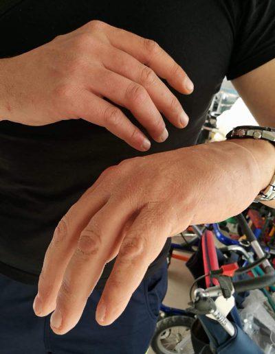 Κοσμητική δάχτυλα σιλικόνης | RehabLine- Αθλητικό προσθετικό μέλος - Χρονόπουλος-Γουγής-Προσθετικά, Ορθοτικά και Τεχνητά Μέλη,