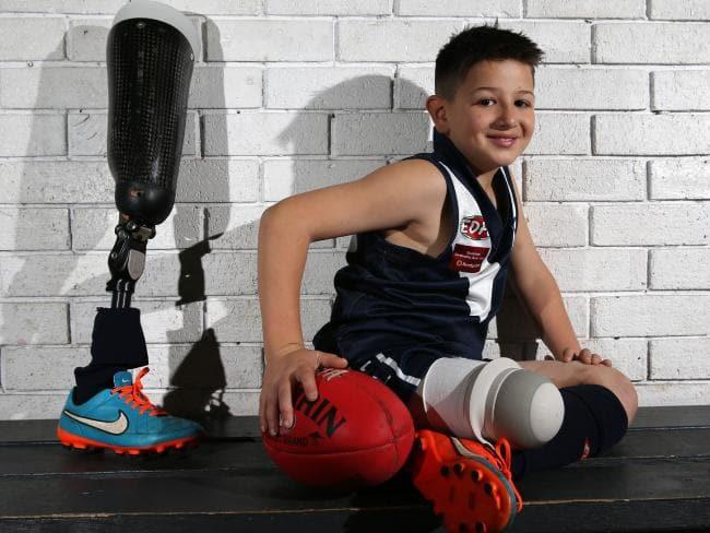 Ο μικρός ποδοσφαιριστής με το προσθετικό πόδι