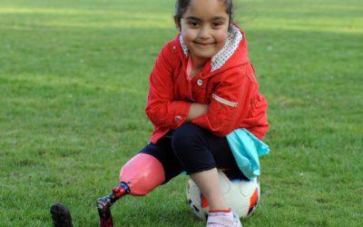 Το  αθλητικό προσθετικό πόδι της μικρής Anu