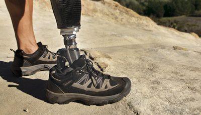 Περπάτημα με προσθετικό πόδι: πώς να το εμπλουτίσετε