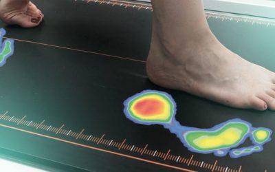 Πλατυποδία και πελματογράφημα